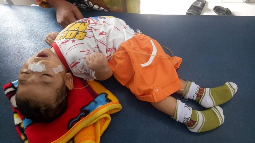 Anak Penderita Hidrospalus dan Meningitis di Siak Butuh Uluran Tangan