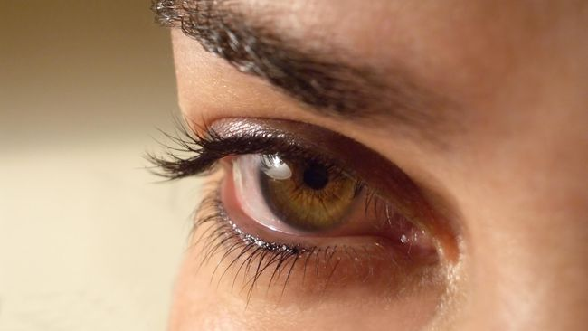 Cara Ampuh Hilangkan Kantong Mata dan Lingkaran Hitam